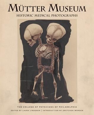 Museo de Mütter: Fotografías médicas históricas